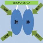 肺気胸の症状~痩せ型に多い?~予防法はあるの?