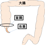 盲腸(虫垂炎)の原因、症状、何科に行く?日本人に多いの?